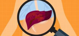 4 Signs Your Liver Is in Trouble + Tips to Protect It | Cleveland Clinic