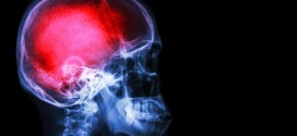 Study finds possible link between blast exposure and Alzheimer's disease | Army Times