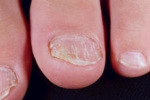 Toenail Psoriasis