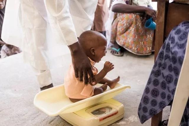 nigeria-malnutrition-enfant