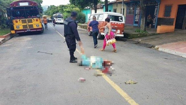 Autobús destroza las piernas de una anciana tras atropellarla en Chalchuapa