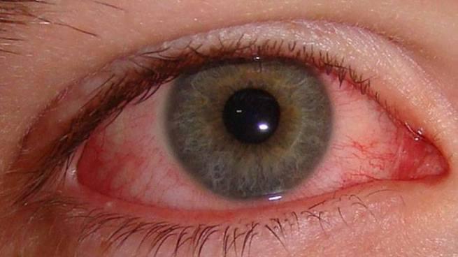 ¿Conoces las causas y síntomas de la Conjuntivitis?