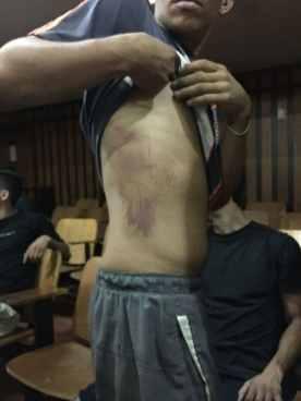 Joven detenido en Venezuela fue violado con un tubo