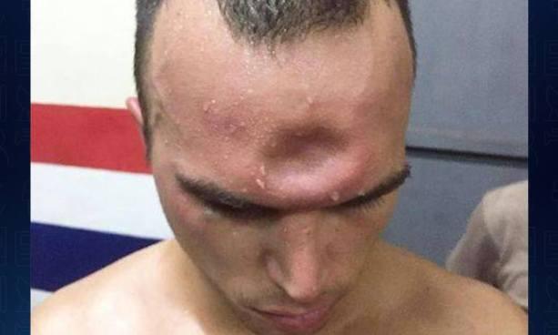 Luchador de Muay Thai terminó con el cráneo hundido después de un combate