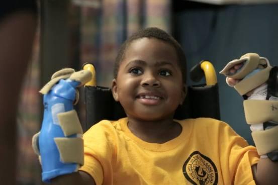 El primer trasplante de manos en un niño resulta todo un éxito