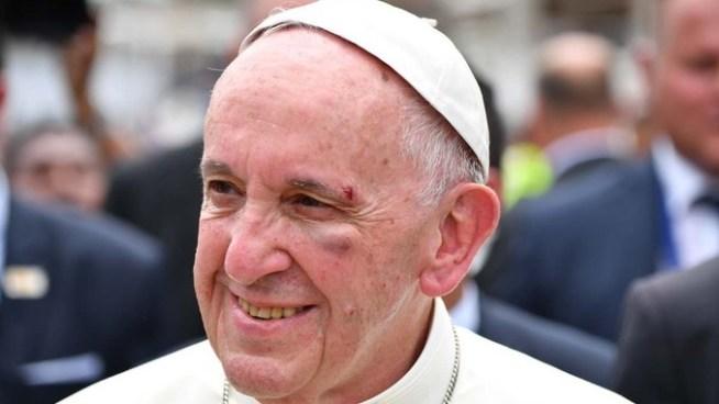 VÍDEO | Papa Francisco se golpea el rostro en el papamóvil