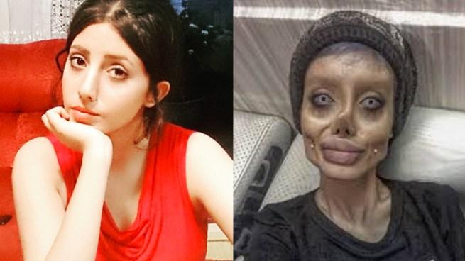 Antes y después de la transformación de la joven iraní que busco parecerse a Angelina Jolie