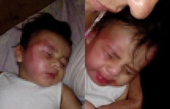 Capturan a mujer que golpeo cruelmente a su bebé en la cara en Nicaragua