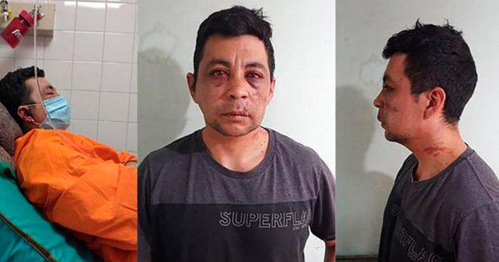 Roban, golpean e incendian la vivienda de un enfermero recuperado de COVID-19