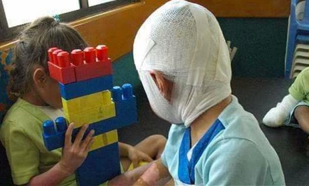 Niño pierde un ojo por encender un volcancito