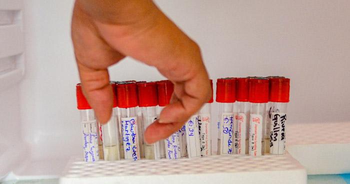 Autorizan a primer laboratorio privado para hacer prueba COVID-19