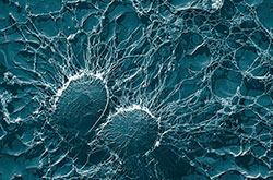 Solution Ozone About Ozone Effect Pathogens Staphylococcus Image
