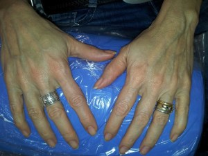 Cosmetic Dentistry Hand Rejuvenation Before