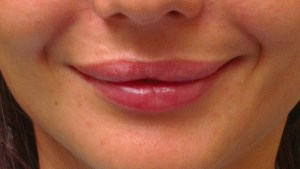 Cosmetic Dentistry Lip Enhancement After