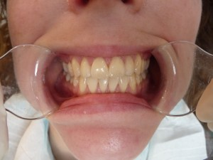 Cosmetic Dentistry Whitening Before