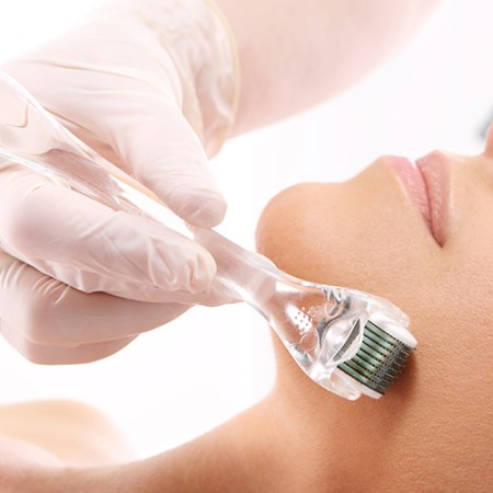 Microneedling - Facial Rejuvenation