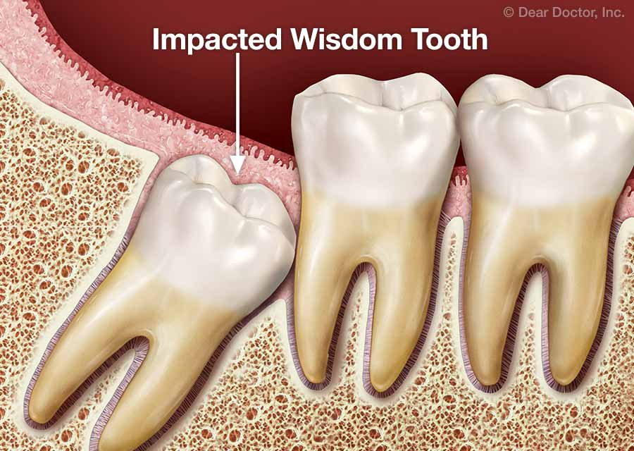 wisdom tooth extracted and having sex