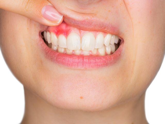 Kết quả hình ảnh cho Cure prevent inflammation around the teeth