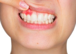 How to stop bleeding gums