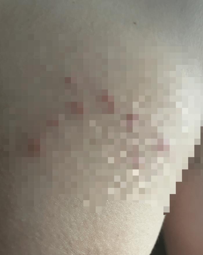 左胸に北斗七星のような傷?ができました(閲覧注意)