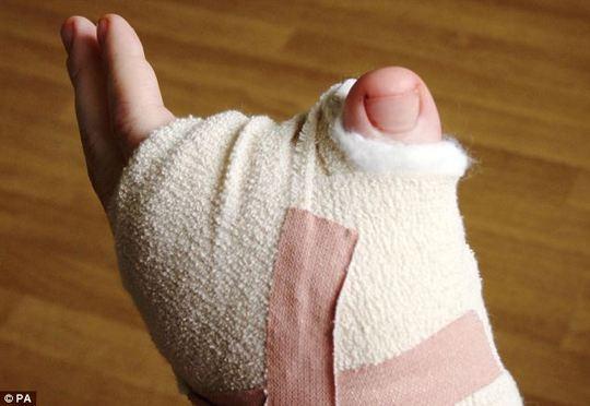 Un hombre se quita el pulgar del pie y se lo pone en la mano