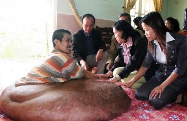Operan un tumor de 90 kilos en Vietnam