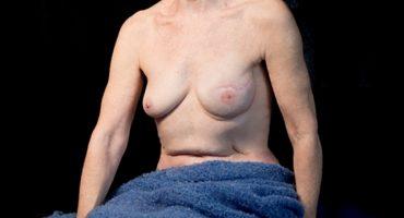 Increíbles fotos de la belleza femenina y los estragos del cáncer de mama