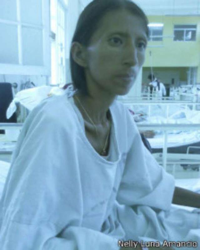 Pensó que estaba embrujada...en realidad estaba enferma :'(