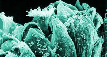 Increíbles fotos magnificadas de plantas