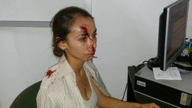 CIDH pide aclarar agresión a periodista, edil guanajuatense evade implicación en ataque