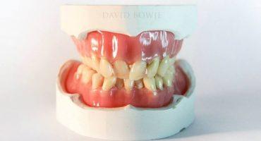 Crean escultura de los dientes de David Bowie