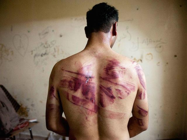 Tortura, una práctica vigente en México