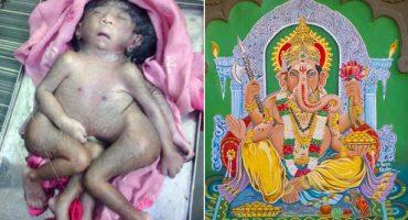 Nace bebé con 4 piernas y 4 brazos: Es adorado como un dios