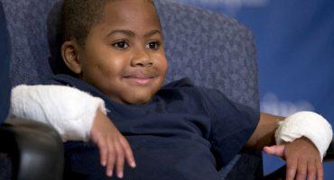 Zion el primer niño del mundo que recibe un doble trasplante de manos