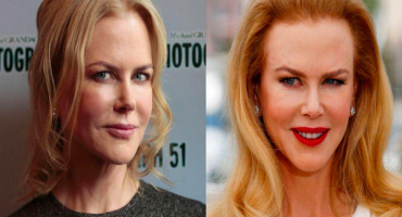 Y con ustedes... el nuevo rostro de Nicole Kidman