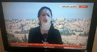 Reportera regresa a transmitir al aire luego de ser golpeada por una granada