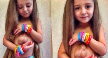 Esta pequeña vive con su corazón fuera del pecho, desafiando cualquier dificultad