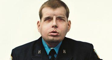 Realizan con éxito el transplante de rostro más extenso hasta la fecha