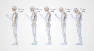 Ver su celular por largos periodos les está arruinando la columna