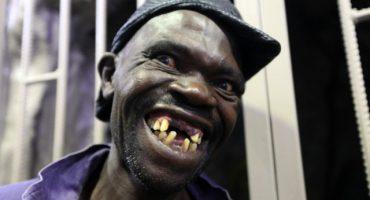 Gana concurso de feos en Zimbabue y lo critican por ser el más guapo