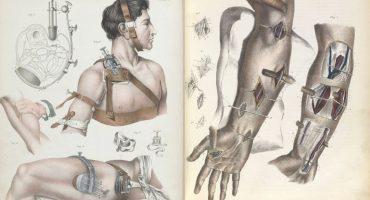 Así eran las cirugías sin anestesia entre los siglos XVII y XIX