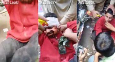 Desenmascaran a niño que se hacía pasar por quemado para pedir limosna