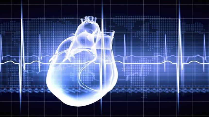 Un monitor cardíaco muestra lo qué sucede con tu corazón cuando te truenan