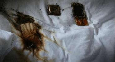 No dejen cargando su celular bajo la almohada; estas fotos explican porque