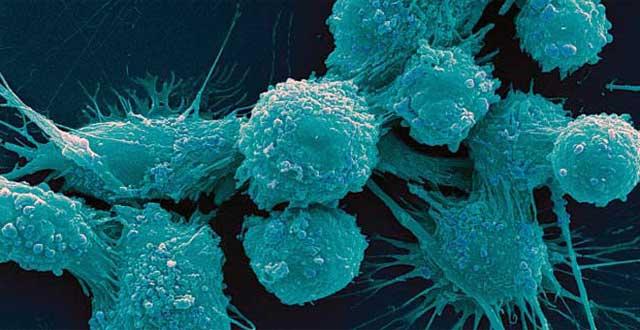 Científicos revelan medicina que podría acabar con el cáncer