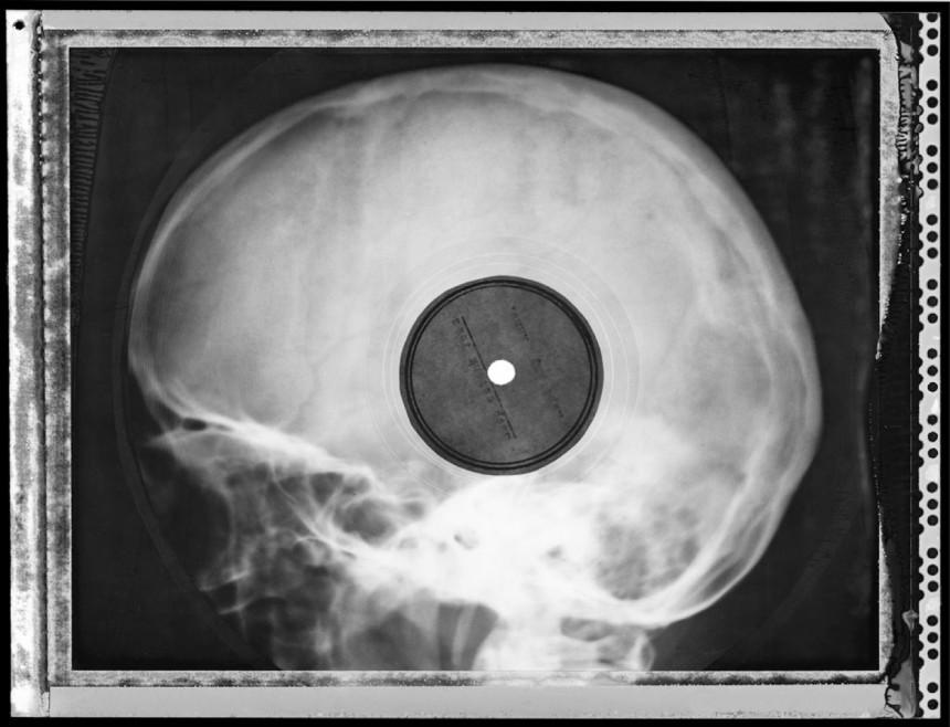 Los 'bone music', la música clandestina hecha con radiografías