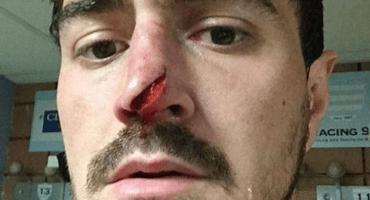 En la imagen del día, así quedó la nariz de un jugador de rugby
