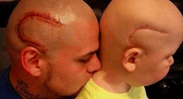 Un padre se tatúa cicatriz en la cabeza para apoyar a su hijo con cáncer