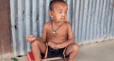 El niño de 4 años cuya condición lo hacer lucir como un anciano