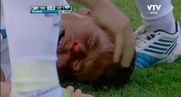 Video: Santiago Romero del Nacional se fractura la nariz... en el festejo